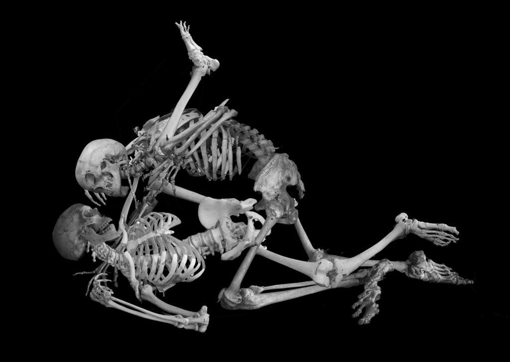 Human Sexual Intercourse X Ray-9906